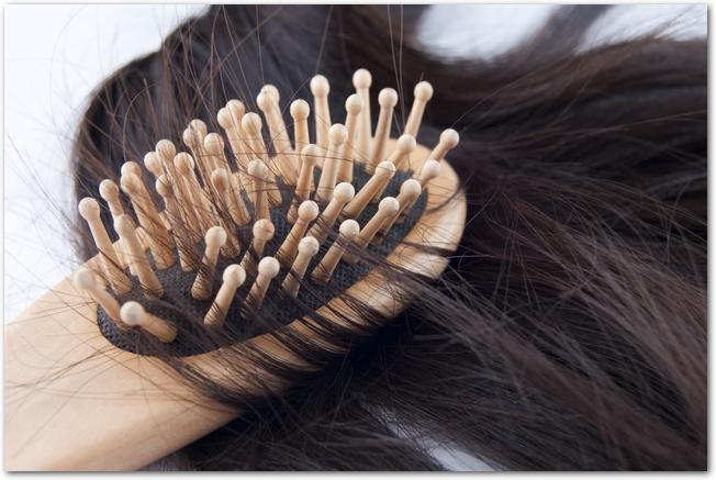 Hairloss.