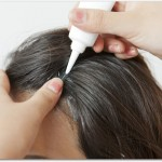 育毛剤で女性に人気のものとは?ベルタ育毛剤やマイナチュレは頭皮の血行を良くしてフケやかゆみを防止してくれる?